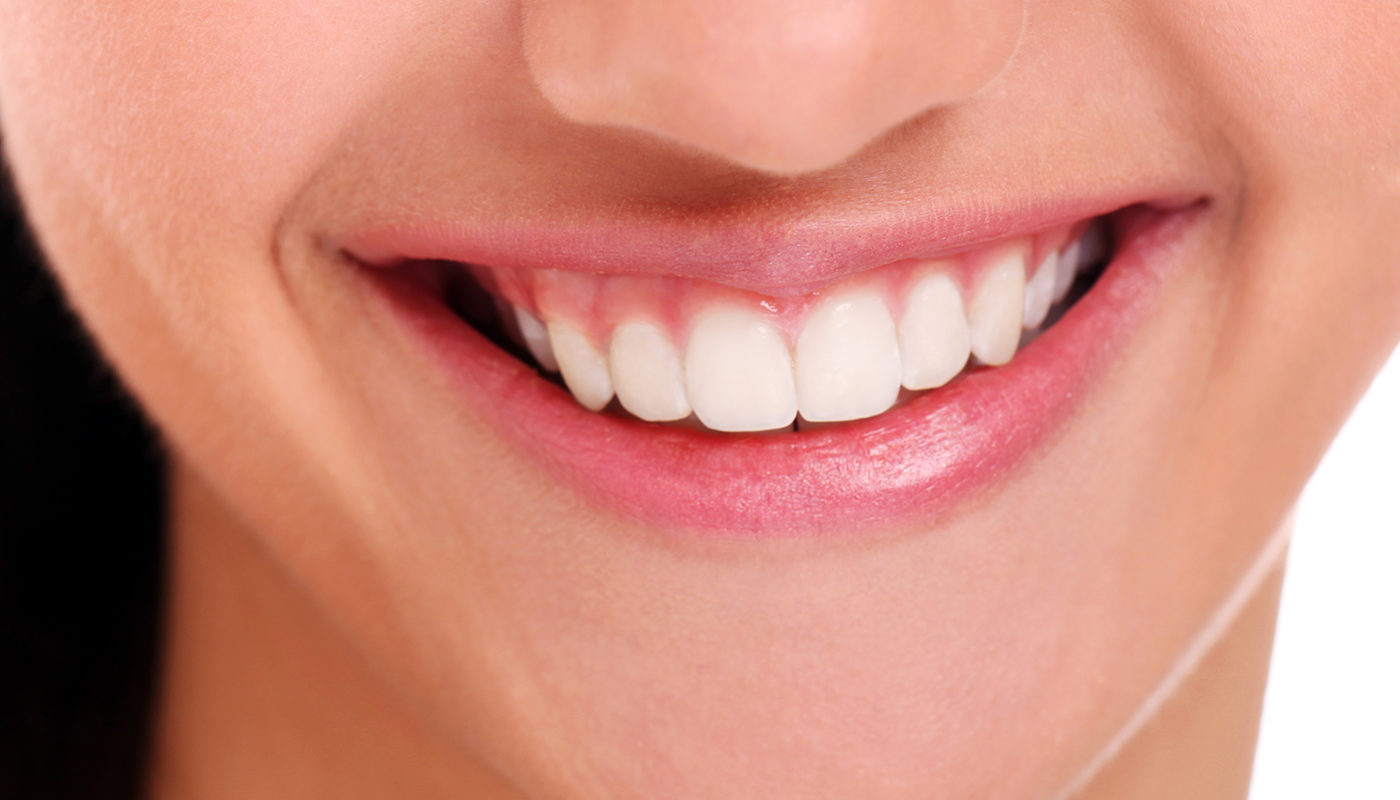 Why choose Bilton Dental Clinic for invisible braces