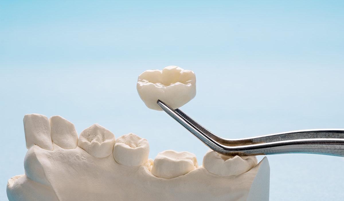 Crowns General dentistry