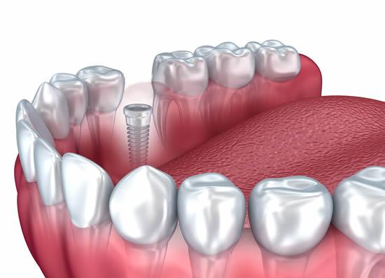 single-implant2