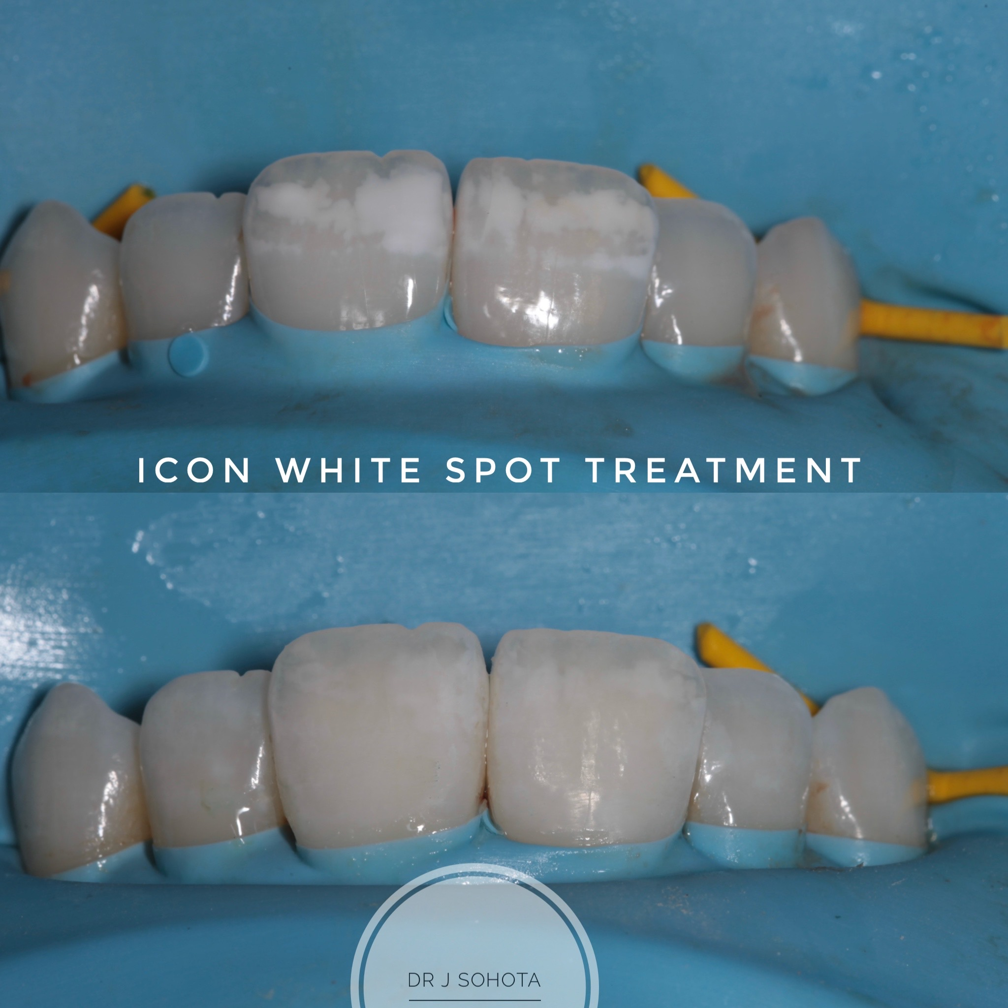 Icon white spot treatment before and after 2